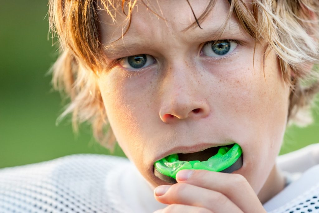 prevent dental emergencies with mouthguards